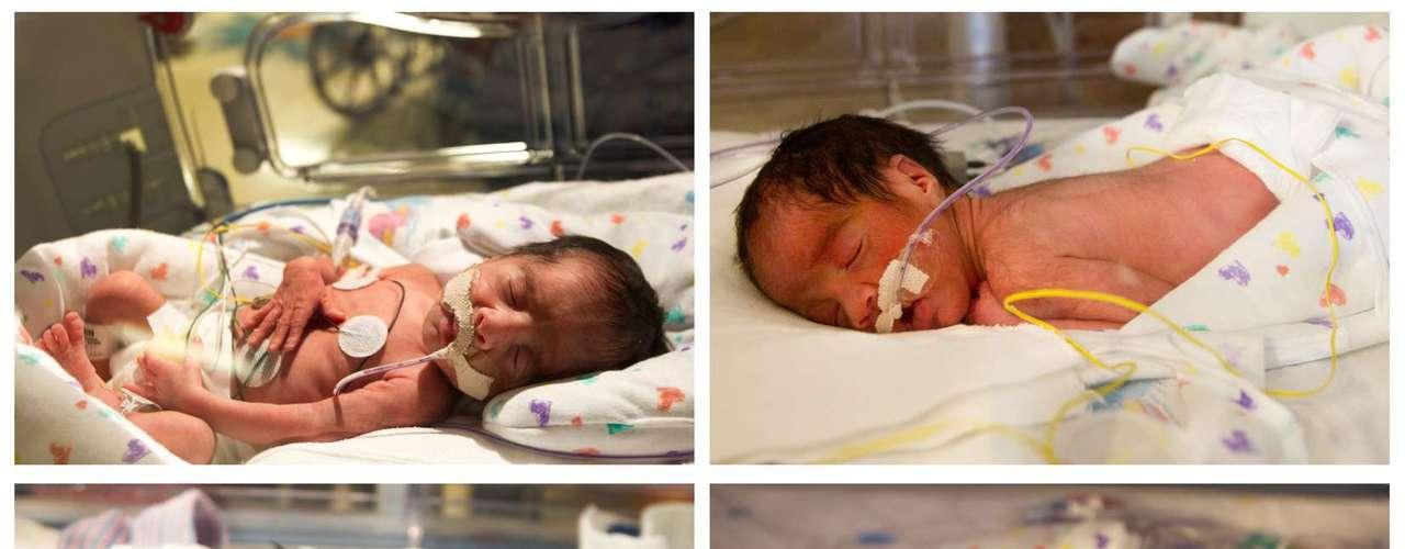 Una madre hispana dio a luz en el mismo parto a dos pares de gemelos idénticos en un hospital de Houston el Día de San Valentín, un evento que ocurre una vez cada 70 millones de nacimientos.