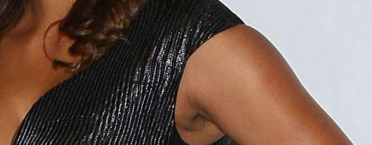 Adicionalmente la actriz, que tiene la piel más oscura en esta zona de su cuerpo, hace la situación más notoria debido a que tiene cicatrices en esta región.