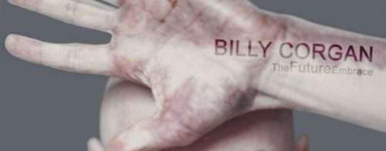 Corgan tiene un gran hemangioma - una mancha - que cubre la mayor parte de la palma y los dedos de su mano izquierda.