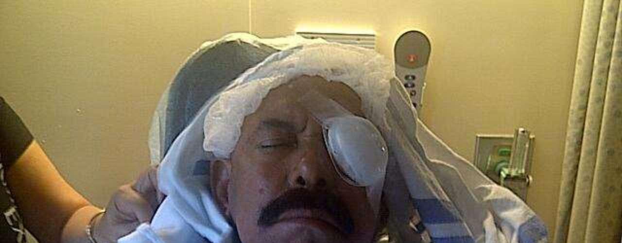 Oscar D'León se recupera del grave percance hogareño que sufrió en Miami, el cual aparte de llevarlo a posponer una gira por varios países de Latinoamérica, le costará muy probablemente la pérdida de la visión de un ojo. \