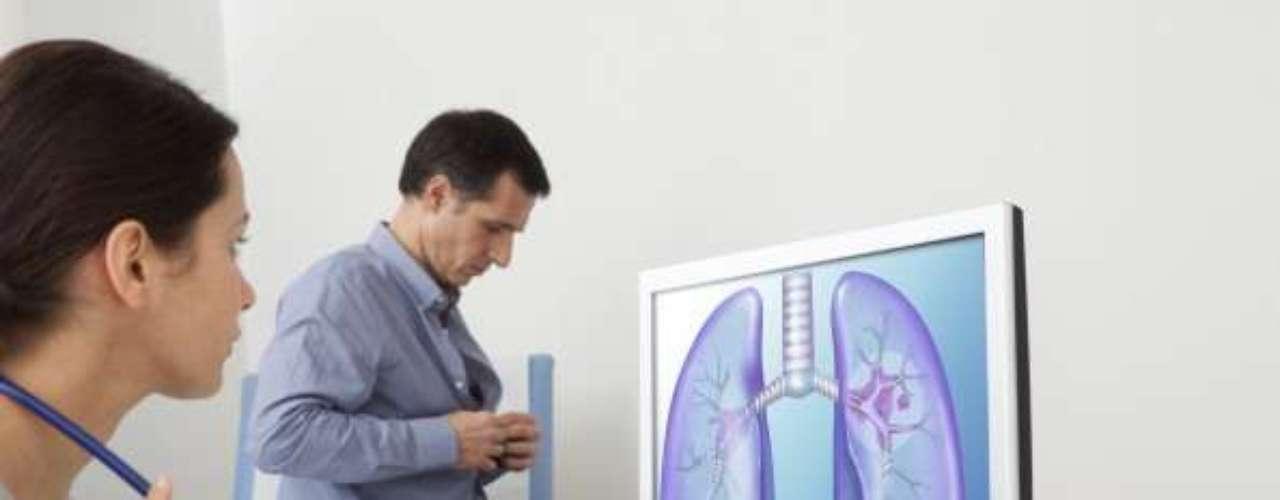 7. Cánceres de tráquea, bronquios y pulmón.Los datos aportados por la OMS revelan que estos cánceres causaron 1,5 millones de muertes (el 2,7% de los decesos) en 2011, mientras que en el año 2000 fueron 1,2 millones (el 2,2 %).