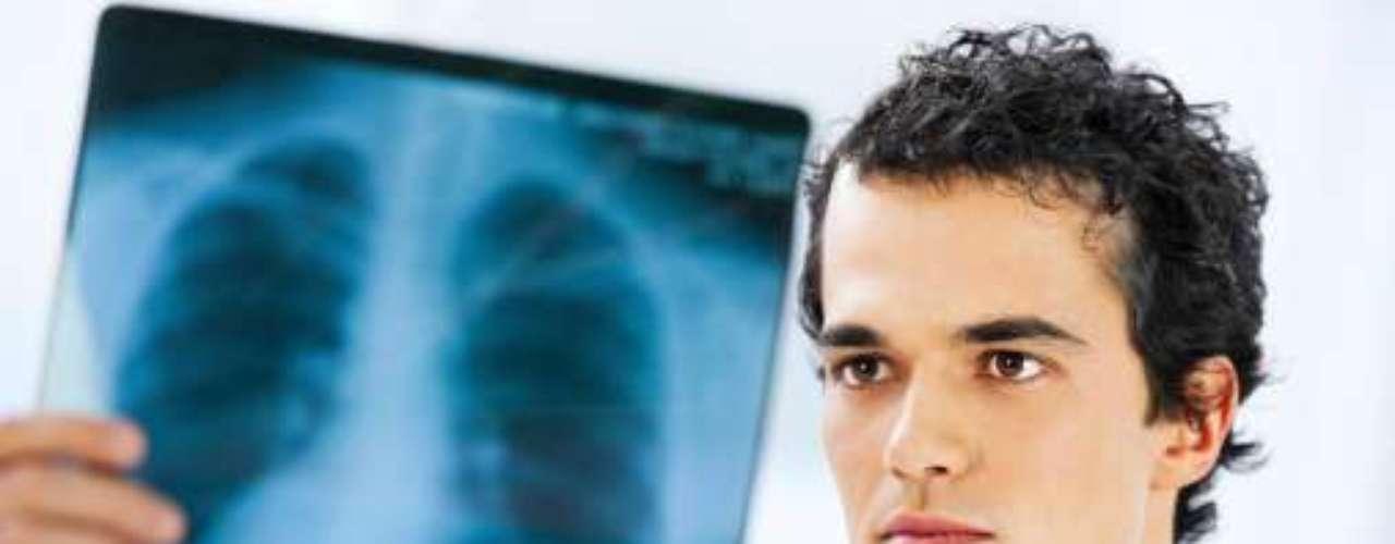 4. Enfermedad pulmonar.La enfermedad pulmonar obstructiva crónica (EPOC) no es una sola enfermedad, sino un concepto general que designa diversas dolencias pulmonares crónicas que limitan el flujo de aire en los pulmones.Por este mal murieron3 millones de personas en el 2011.