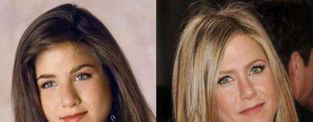 La belleza de Jennifer Aniston no se niega, pero la actriz ha utilizado algunas ayudaspara lucir sexy. Jennifer admitió en el 2007 su operación de nariz