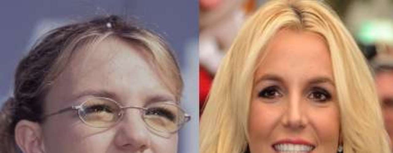 Britney Spears es una de las famosas que no oculta su operación de nariz.