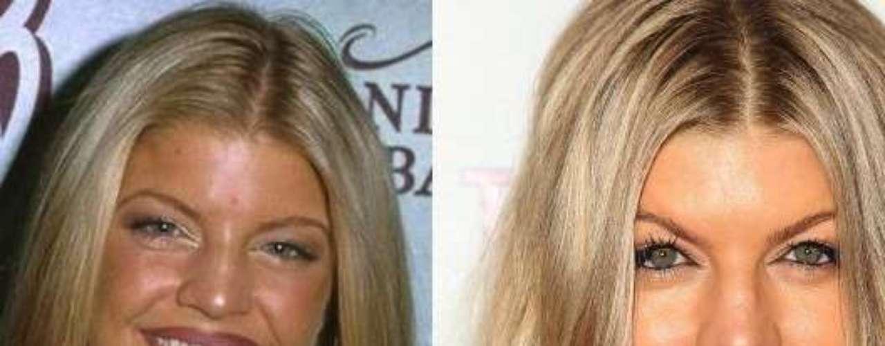 A Fergie le encantan las cirugías, la mujer se retocó la nariz para tenerla más definida.