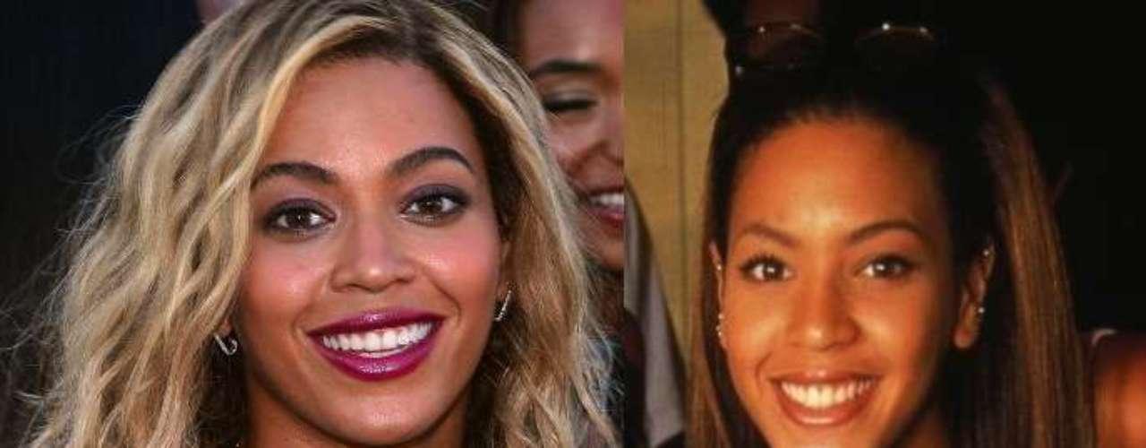 Aunque no senota muchoel cambio, Beyoncé visitó el quirófano hace algún tiempo.