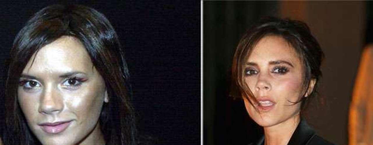 Antes y después. Vctoria Beckham fue en su día una chica bastante 'feita', pero gracias a algunos retoques se convirtió en una mujer sumamente atractiva.