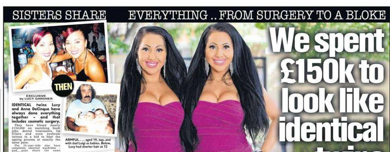 Las gemelas Lucy y Anna DeCinque han dado la vuelta al mundo con su extraña historia de hermandad.