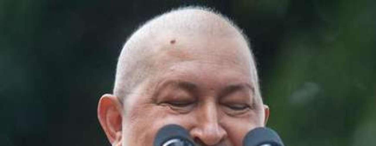 Esta foto fue tomada en noviembre de 2011, debido a los tratamientos para combatir el cáncer, Chávez aparece hinchado y sin cabello.
