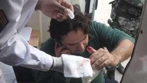 Reportero de Terra resulta herido durante protesta anti-Mundial Video: