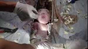 Horror: tira el bebé por el inodoro y logran salvarlo Video: