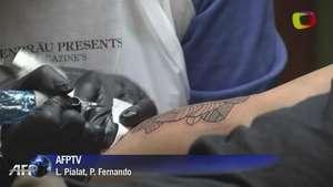 Láser, solución para quienes desean borrar tatuajes Video: