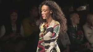 Moda: Modelo con vitíligo lidera inspiradora revolución Video: