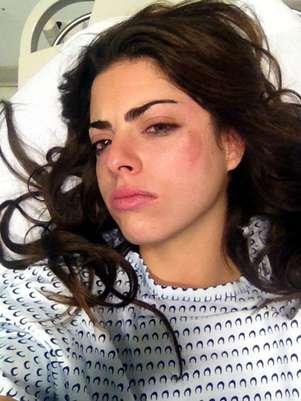 Isabel Burr, protagonista de 'Niñas Mal 2', sufrió golpes en el rostro y usará collarín. Foto: Reforma