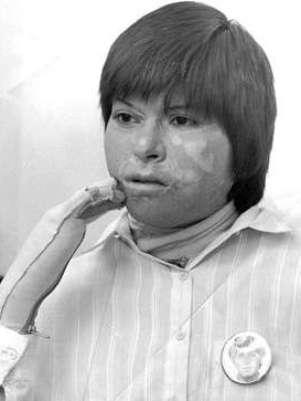 Carmen Gloria Quintana sobrevivió a brutal ataque. Foto: Gentileza: Generación80