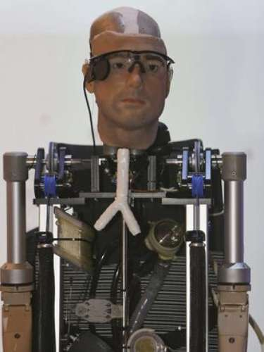 The cost of the first bionic man is about 1 million dollars.