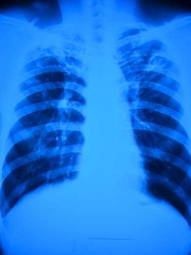 Desde 1995 se ha tratado satisfactoriamente a aproximadamente 51 millones de pacientes con tuberculosis en todo el mundo. Desde 1995 se han salvado hasta 20 millones de vidas mediante el tratamiento breve bajo observación directa (DOTS) y la estrategia Alto a la Tuberculosis.