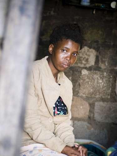 Hasta 70 mil niños murieron de tuberculosis en el mundo en 2011. La tuberculosis infantil no suele recibir una atención suficiente por parte de los proveedores de atención de la salud y puede ser difícil de diagnosticar y tratar. Existen en el mundo unos 10 millones de niños huérfanos como resultado del fallecimiento de adultos por tuberculosis.