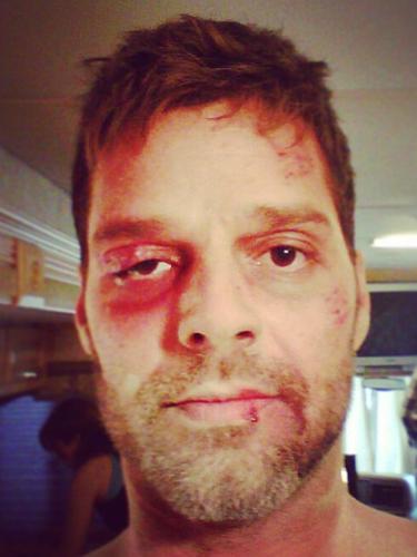 13 de Septiembre - ¡OMG! ¿Qué le pasó a Ricky Martin? El cantante se mostró golpeado en su cuenta de Instagram donde especificó que estaba bien y que sólo está maquillado al grabar su nuevo video. ¡Nos espantó!