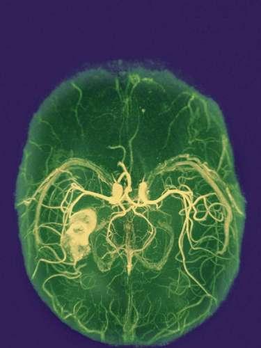 Aumenta el riesgo de enfermedad cerebrovascular. Las personas estresadas pueden tener un riesgo mayor a dicha enfermedad de acuerdo con un estudio publicado en la Revista de Neurología, Neurocirugía y Psiquiatría.