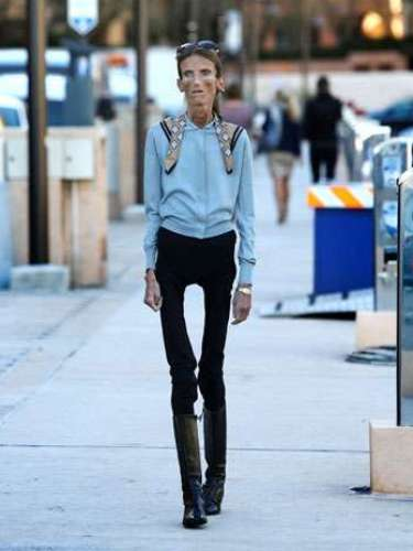 Nacida en Moscú, Valeria se acerca a los 40 años y pesa 25 kilogramos, a pesar de sus 1.72 centímetros de estatura. Es una mujer con el peso de un niño de 6 años, debido a su enfermedad, y la apariencia de una persona de 60 ¿Cómo llegó a este estado?
