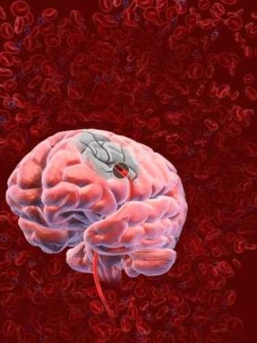 2. Derrames cerebrales.Los ataques apopléticos y otras enfermedades cerebrovasculares causaron la muerte de 6,2 millones de personas en el 2011.