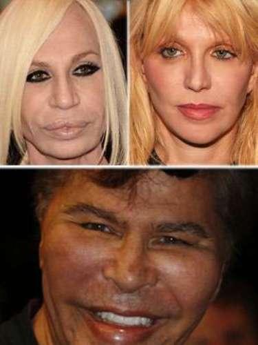Muchos famosos se han convertido en personajes 'muy difíciles de mirar' por distintas razones: envejecimiento, cirugía, o sencillamente porque no fueron dotados con el don de la belleza. Obsérvalos a continuación.