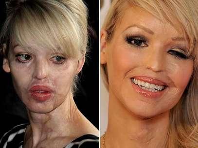 Las quemaduras de tercer grado en su rostro y la córnea del ojo izquierdo truncaron su carrera como modelo.  Foto: Getty Images