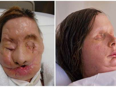 Charla Nash was attacked in February 2009, when her friend's 200-pound chimpanzee went on a rampage and ripped off her nose, lips, eyes and hands. Foto: AP