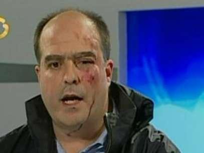 Foto: Captura Globovisión