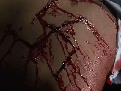 """Marca nazista no corpo do """"Victor"""", após a surra.  Foto: cortesia da TVN."""