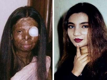 Dos fotografías de Fakhra Younus antes y después de que le arrojara ácido en el rostro y cuerpo su esposo, un ex legislador e hijo de un poderoso polìtico hace doce años.  Foto: Cortesía de la familia de Fakhra Younus / AP