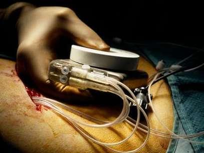 Investigación sugiere que los marcapasos podrían ser reutilizados. Foto: Thinkstock