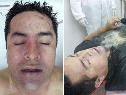 Las fotos que se tomaron en la funeraria, antes de que fuera robado el cadáver de El Lazca. Foto: AP