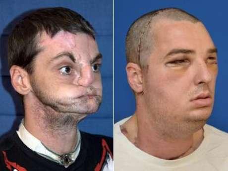 Norris tenía 22 años cuando un accidente con un arma de fuego le dejó con el rostro hundido y sin labios, nariz y la parte delantera de la lengua. Foto: Archivo