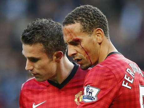 Rio Ferfdinand was left cut and bleeding after a fan hit him with a coin during Manchester United's 3-2 win over Manchester City in the derby Sunday. Foto: Getty Images
