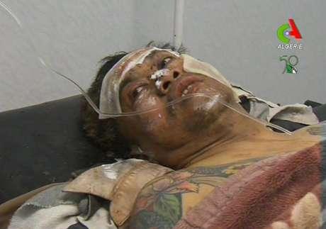 Una persona no dentificada que estaba como rehén recibe atención médica después de que resultara herida durante una operación militar contra extremistas islámicos en una planta de gas en Argelia, el viernes 18 de enero de 2013. Foto: AP