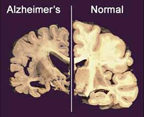 Esta imagen sin fechar suministrada por Merck & Co., muestra la sección transversal de un cerebro normal a la derecha y la de un cerebro dañado por la enfermedad de Alzheimer a la izquierda.  Foto: Merck & Co./Archivo / AP