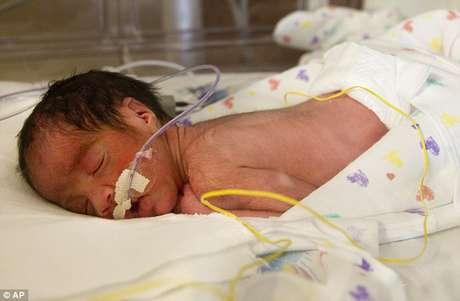 Blaine Montalvo, el segundo de los bebes, pesó 3 libras y 15 onzas. Foto: AP