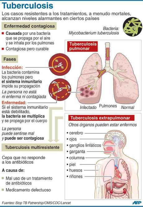 Tuberculosis Foto: AFP