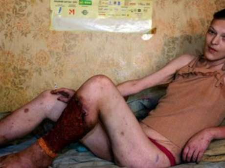 """""""Se ha presentado un caso de este droga en Puerto Vallarta, droga que ya llegó a la Ciudad de México y hay evidencia que también a Vallarta, altamente adictiva y barata y se puede consumir de tres formas como cocaína, heroína y cristal"""", dijo José Sotero Ruiz Hernández del INM al Sol de Nayarit. Foto: Especial/Terra"""