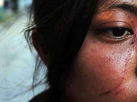El Copred ha documentado que agresiones por discriminación, además de lesiones físicas, afectan emocionalmente a las personas. Foto: Alberto Neri / Reforma