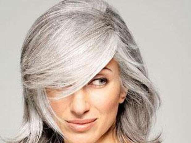 Киркоров пересадка волос