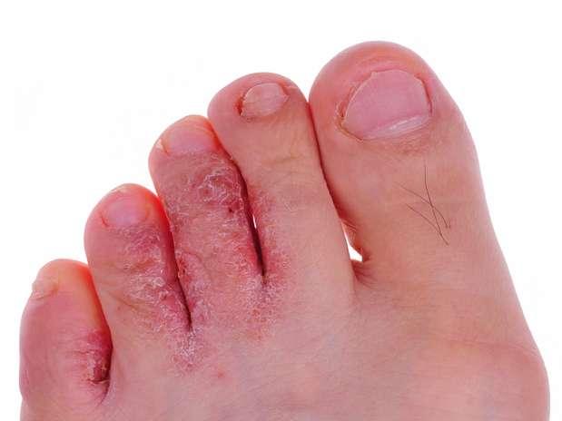 El hongo de las uñas de las manos en las estampas