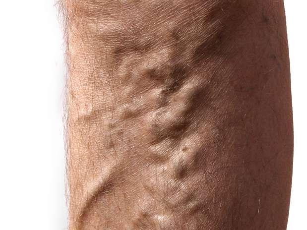 Las várices son una dilatación venosa que con frecuencia aparecen en las piernas. Foto: Thinkstock
