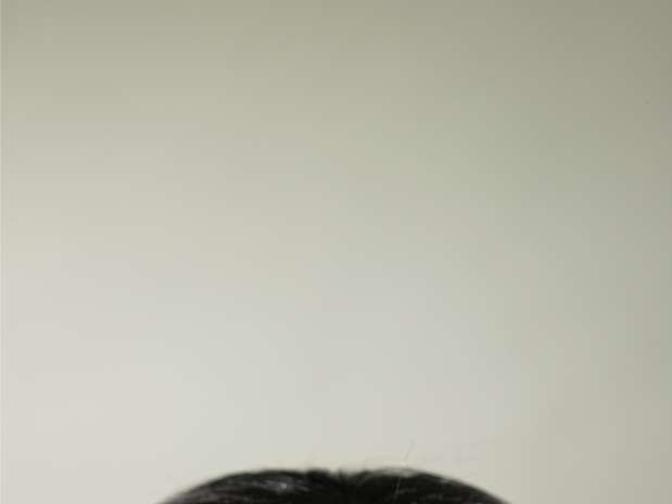 Que vitaminas a la caída de los cabello a las mujeres las revocaciones